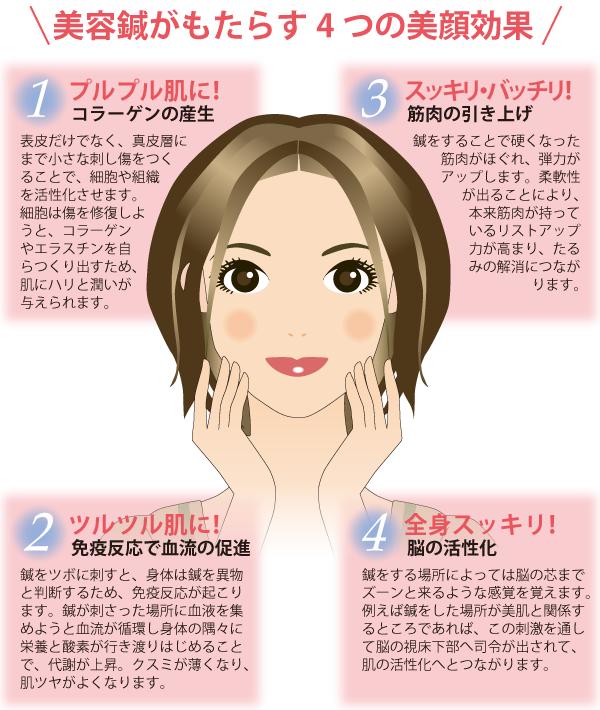 美容鍼がもたらす4つの美顔効果